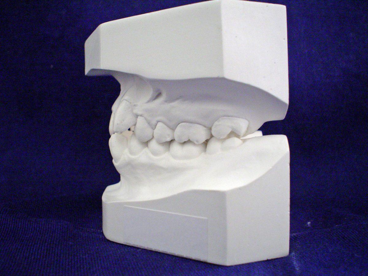 Nitkowanie i płukanie zębów